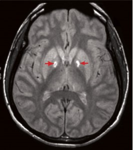 http://picturespider.com/i-pictures-of-brain-mri-with-lesions.php