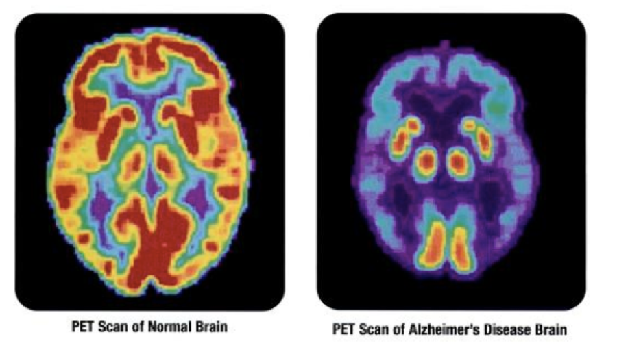 a better understanding of how alzheimers disease affects the human body 2018-5-18  understanding the pathway that links alzheimer's disease and type 2 diabetes can lead to the development of new therapeutic strategies to preserve brain health, reports a new study.