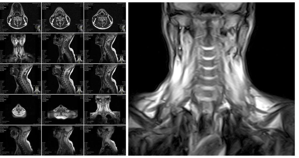 MRI results reading